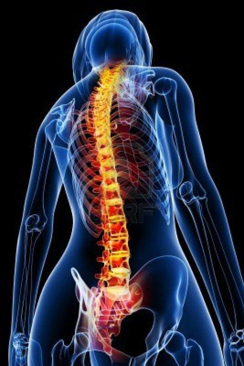 13757558-3d-rindio-la-medica-de-rayos-x-de-la-anatomia-de-la-columna-vertebral-ilustracion-mujer